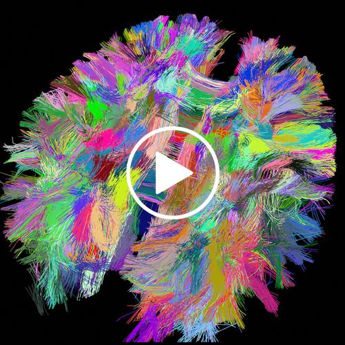 Le pouvoir insoupçonné de la musique sur notre cerveau